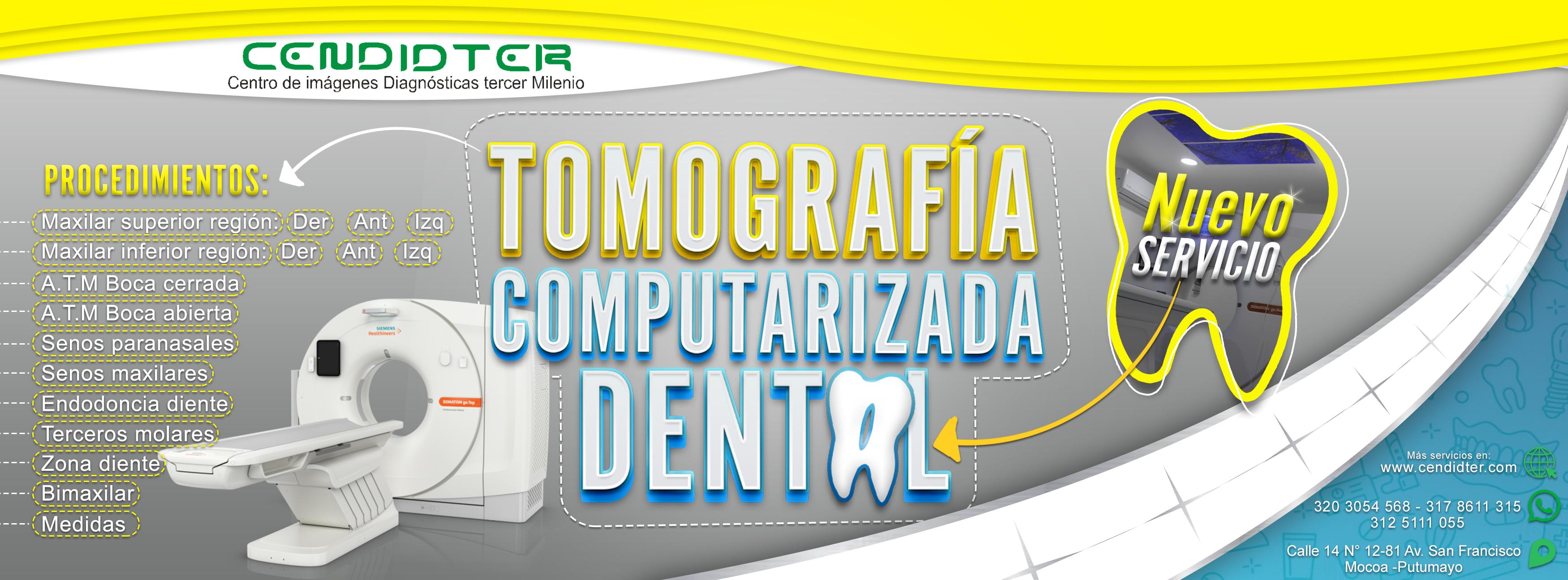 Tomografía computarizada dental